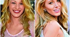 Blake Lively before and after plastic surgery
