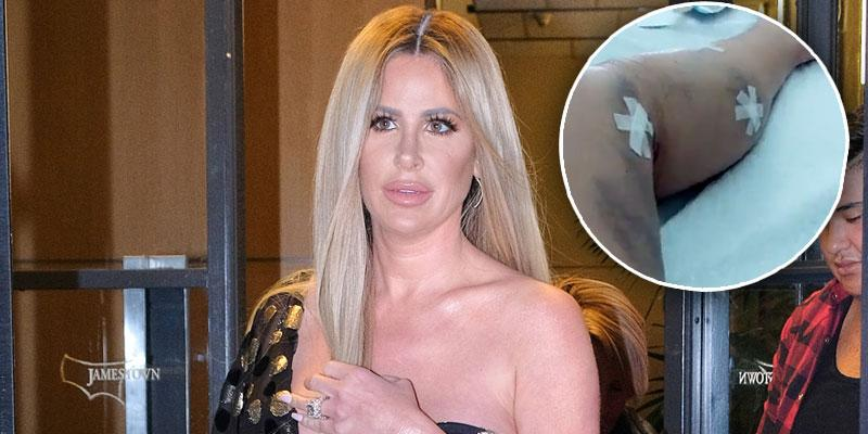 kim zolciak biermann surgery