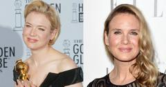 Before after renee zellweger
