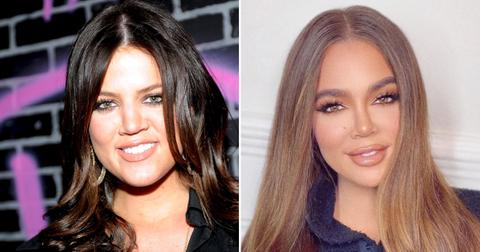 khloe kardashian face transformation plastic surgery experts photo pf