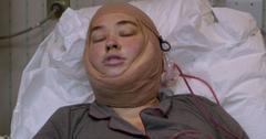Mama June Skin Removal Surgery