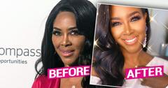 RHOA's Kenya Moore Plastic Surgery Docs Weigh In.