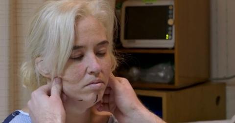 Mama june saggy skin surgery video