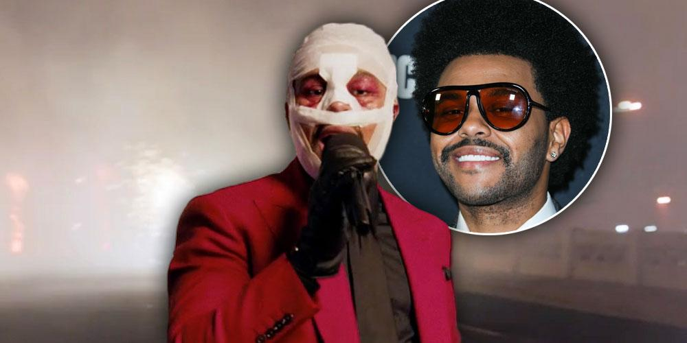 Why Was The Weeknd's Face Bandaged At The AMA's? See Fans React