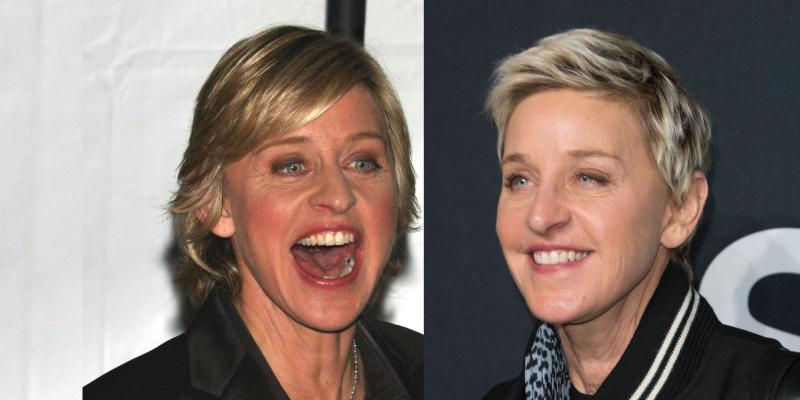 ellen-hair-evolution-gallery-feature