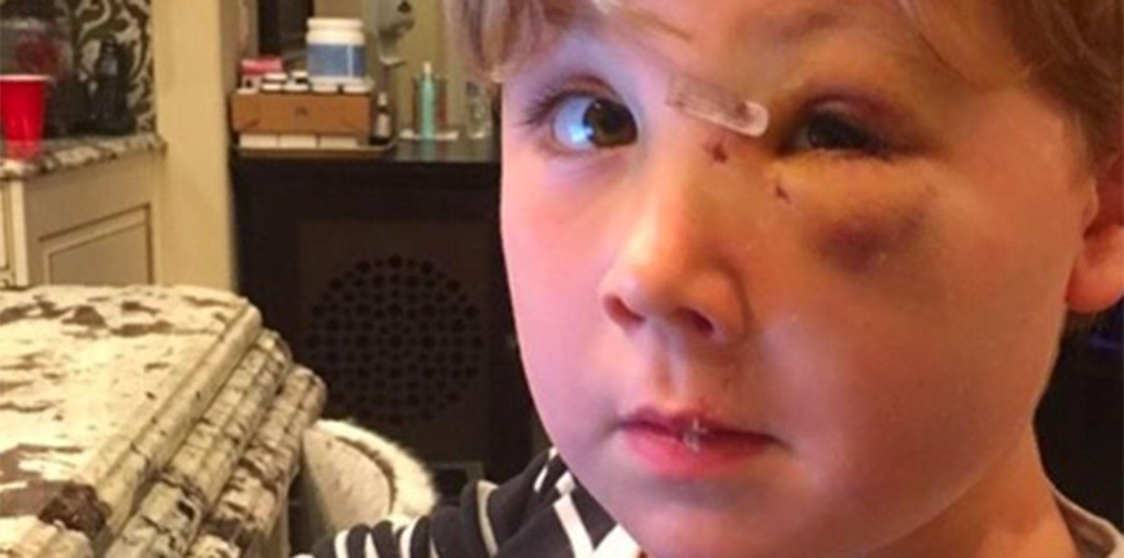 Kim zolciak son attacked by dog photos