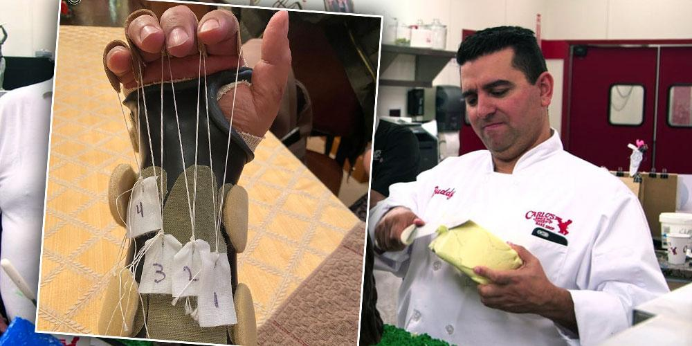 'Cake Boss' Buddy Valastro Shows Off Damaged Hand After His Accident