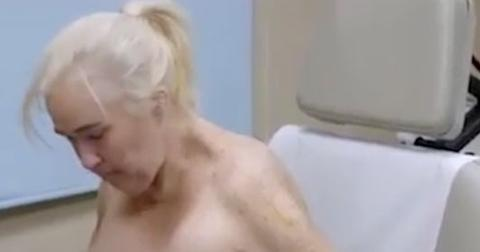 Mama june naked skin removal weight loss video 07