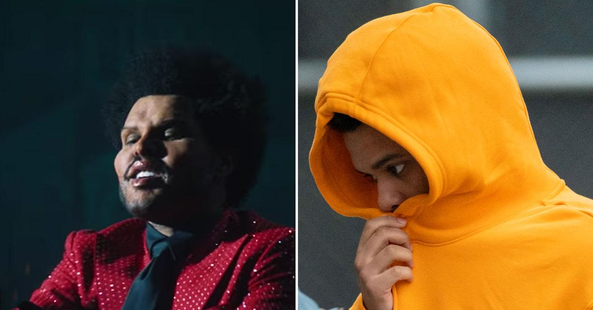 the weeknd reveals own face plastic surgery transformation pf