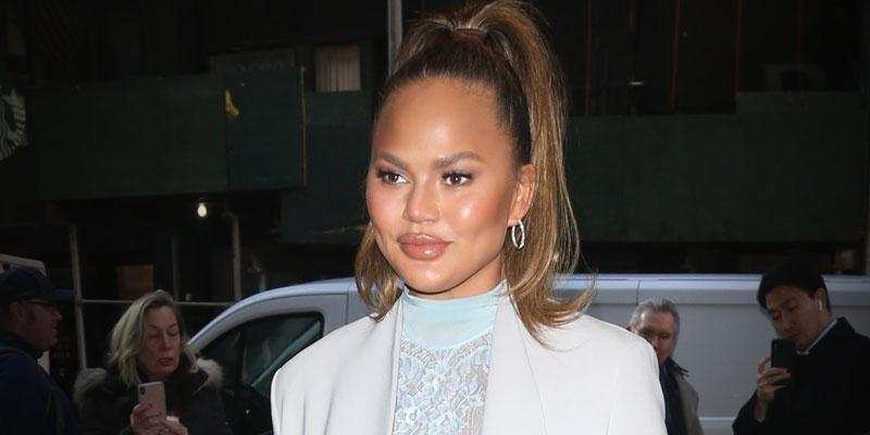 Chrissy Teigen Uses Botox To Help Her Migraines While Pregnant