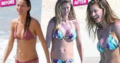 Gisele bundchen bikini plastic surgery 03